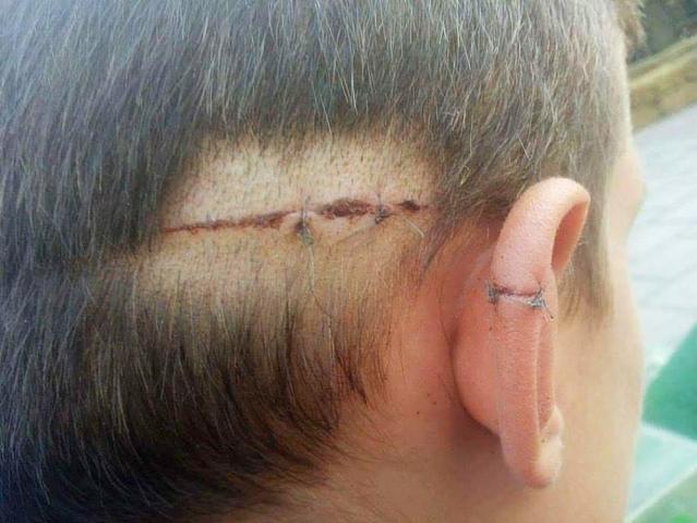 Повређени дечак, Фото: РАС
