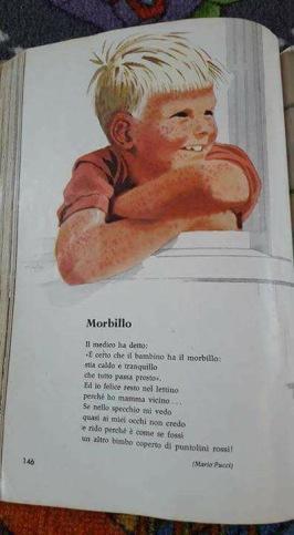 slika morbili